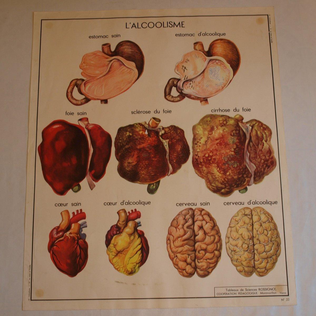 Anatomy Poster On Sale | 178.128.108.15